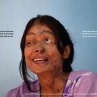 Depilex SmileAgain Foundation Campaign