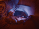 Deep Dive into Canyons of the Inner Ear with Otex Ear Drops
