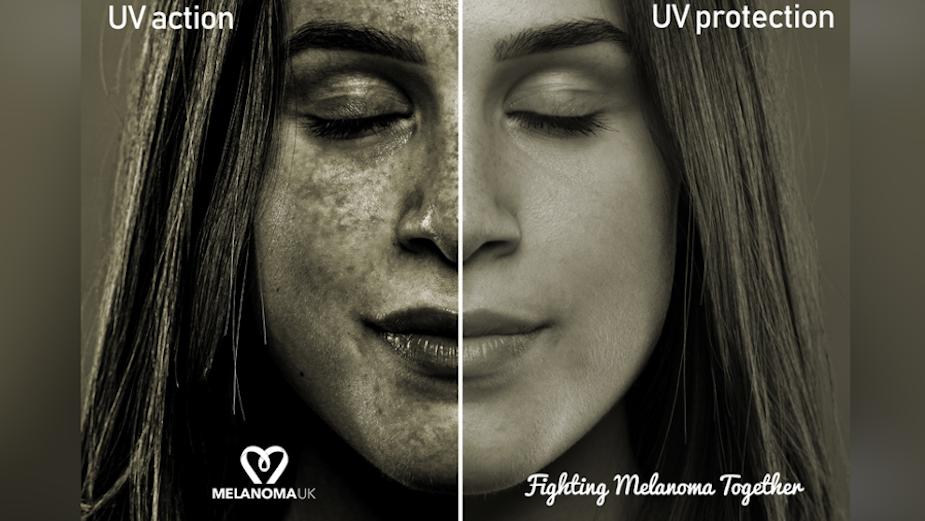 Spotlight On: Melanoma UK