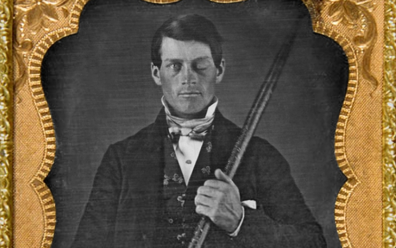 Advertising. Phineas Gage is a Strange Story We Should All Know