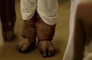 How O&M Mumbai's Public Health PSA is Combating Elephantiasis in India
