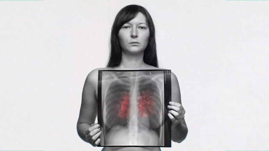 Rankin Shoots Campaign to Raise Awareness of Lung Cancer in People who've Never Smoked
