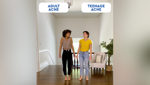 Dermatologist-Led Brand Differin Gets Real with the Realist Generation Ever on TikTok